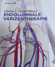 Endoluminale Varizentherapie